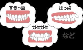 悪い歯並びの種類