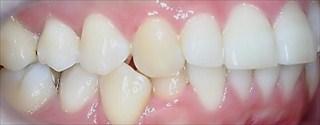 上下顎臼歯部における重度の叢生、交差咬合、上顎左側Ⅱ級