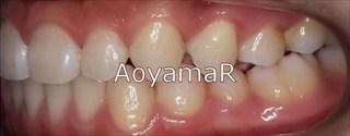上下顎歯列に重度の叢生を伴う下顎前突