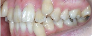 上下顎の歯列重度の叢生、臼歯の交差咬合