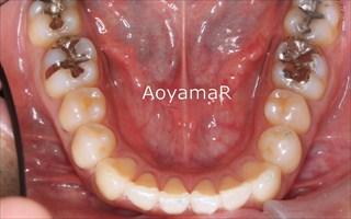 上顎歯列における重度の叢生