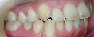 上下顎歯列における中等度の叢生