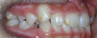 上顎大臼歯近心萌出、上顎左側側切歯舌側転位による重度の叢生