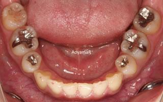 上下歯列の重度の叢生
