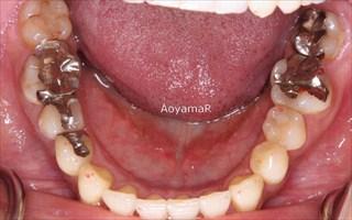 上顎歯列の狭窄、近心位を伴う重度の叢生両側Ⅱ級咬合