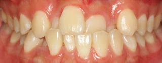 上下顎歯列重度の叢生、前歯部反対咬合