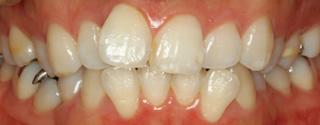 上下顎歯列における重度の叢生