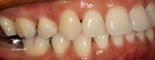 上下顎左右側犬歯低位唇側転位を伴う上下歯列重度の叢生