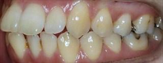 上顎歯列狭窄による上顎両側中切歯の唇側傾斜