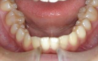 上顎歯列狭窄、上顎近心位による上顎前突