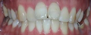 上顎右側近心位による上顎前突、上顎中切歯の唇側傾斜