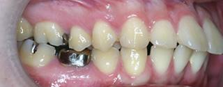 上顎大臼歯近心位による上顎前歯の唇側傾斜