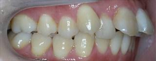上顎両側近心位を伴う重度の叢生および上顎前歯の突出