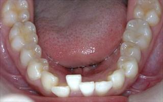 上顎両側近心位を伴う中等度の叢生、上顎中切歯の唇側傾斜