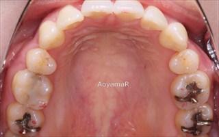 上顎両側近心位による上顎前突、叢生