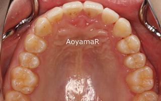 上顎右側近心位による上顎前突、叢生