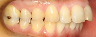 上顎近心位による上顎前突、上顎中切歯の唇側傾斜