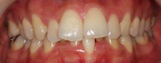 上顎右側近心位による上顎前突、上下顎の叢生