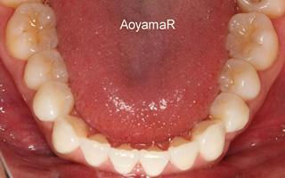 上顎歯列近心位および狭窄による上顎前突、叢生