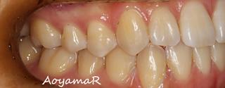 下顎歯列近心位による下顎前歯の叢生および反対咬合