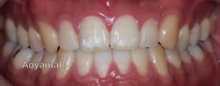 上顎歯列の狭窄、下顎歯列近心位による上下顎前歯の反対咬合