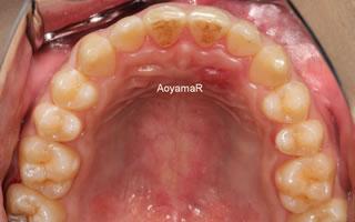 上顎歯列の狭窄による上下顎前歯の反対咬合