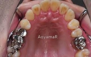 上顎歯列の重度叢生、下顎歯列近心位による上下顎前歯の反対咬合