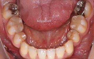 上顎両側側切歯先天欠如による上顎歯列の狭窄