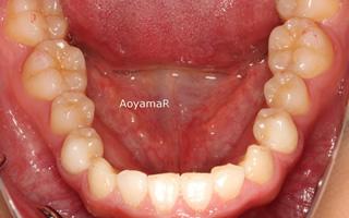 上顎前歯の舌側傾斜による反対咬合