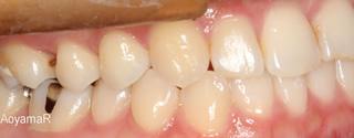上下顎歯列狭窄による反対咬合