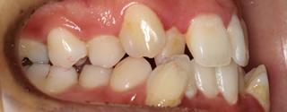 上下歯列の重度叢生、下顎近心位による下顎前歯の反対咬合