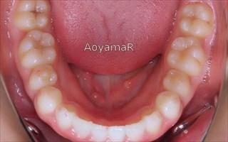 口元の突出、上下顎歯列近心位による上下顎前歯の唇側傾斜