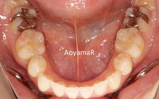 口元の突出、重度叢生を伴う上下顎歯列の近心位