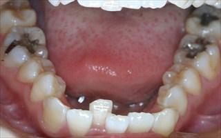 口元の突出、重度叢生を伴う下顎歯列の近心位