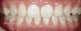 口元の突出、開咬を伴う上下顎歯列の近心位