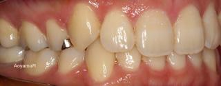 上下右側犬歯低位唇側転位を伴う上下顎歯列重度の叢生、軽度の開咬