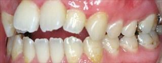 上顎歯列近心位による開咬、上顎前歯の唇側傾斜