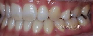 下顎歯列の近心位、重度の叢生、上下顎歯列の狭窄による開咬