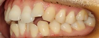 上下顎歯列狭窄による前歯の叢生および開咬