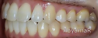 上顎歯列狭窄による前歯の叢生および開咬