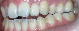 上下顎歯列の狭窄による上顎前歯の開咬