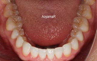 上顎歯列の狭窄による開咬