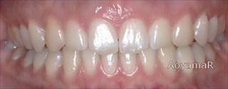 上顎前歯の挺出、下顎前歯の舌側傾斜による過蓋咬合