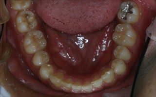 上下顎歯列の狭窄、上顎右側近心位、上顎右側大臼歯の反対咬合