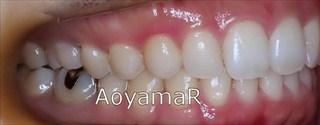 上下顎に軽度の叢生を伴う過蓋咬合、上下歯列の狭窄