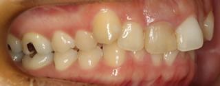 上顎大臼歯近心位による中等度の叢生を伴う過蓋咬合