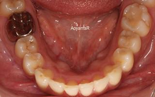 上下顎に重度の叢生を伴う過蓋咬合