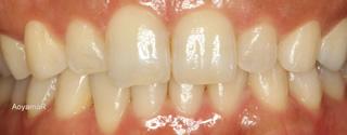 上下顎に叢生を伴う過蓋咬合、上下歯列の狭窄