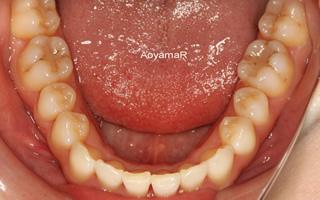 上顎中切歯翼状捻転を伴う上顎前突、重度の過蓋咬合