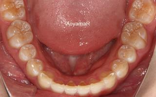上顎中切歯翼状捻転および上顎前突を伴う空隙歯列過蓋咬合